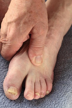 Diabetic_Foot_Infection