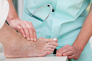 Bunion Surgery Treatment