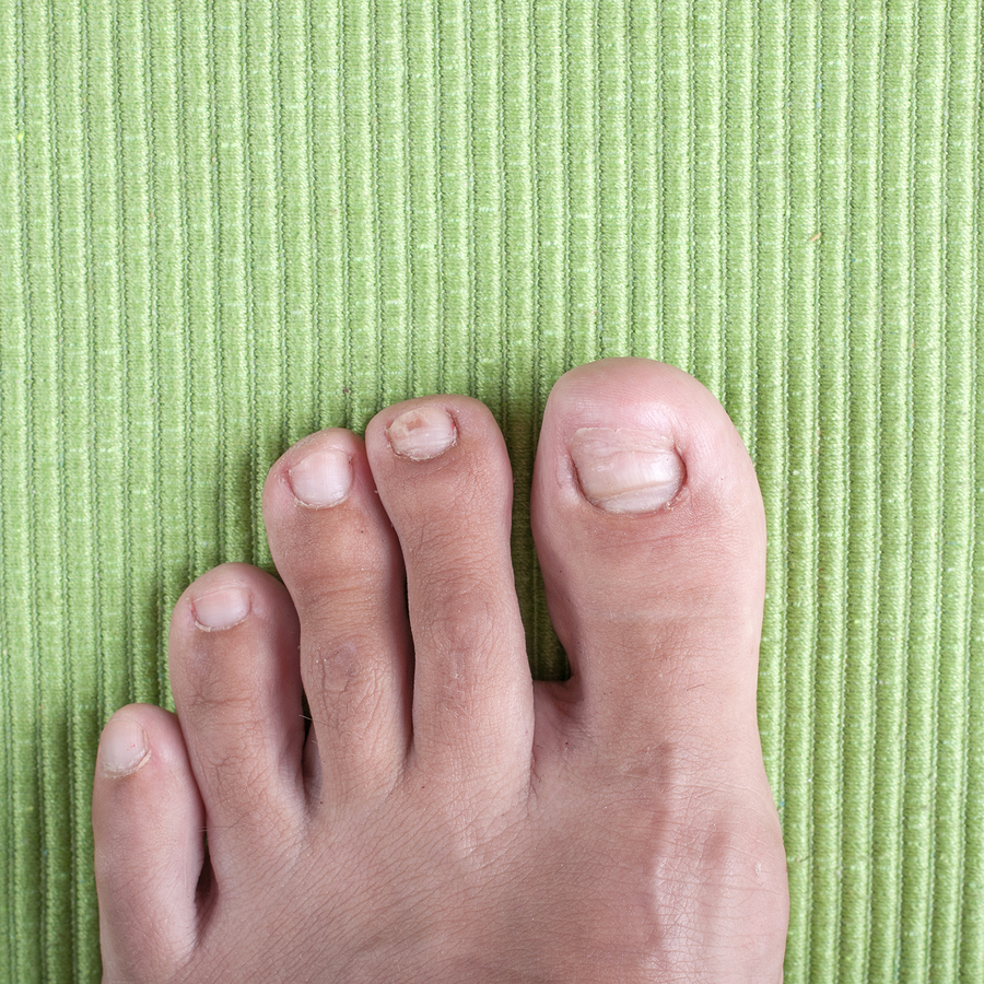 Treating An Ingrown Toenail Podiatrist In Avon Ct